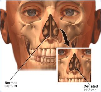 Septal Splint Deviated Nasal Septum White Rock Ent Dallas