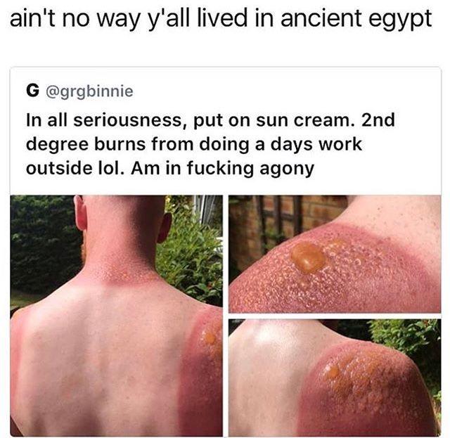 Pin by Iceglacierswank on Funny | Lol, 2nd degree burns, Memes