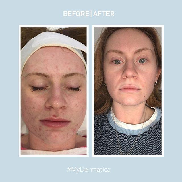 Dermatica Skincare Dermatica Skin Instagram Photos And
