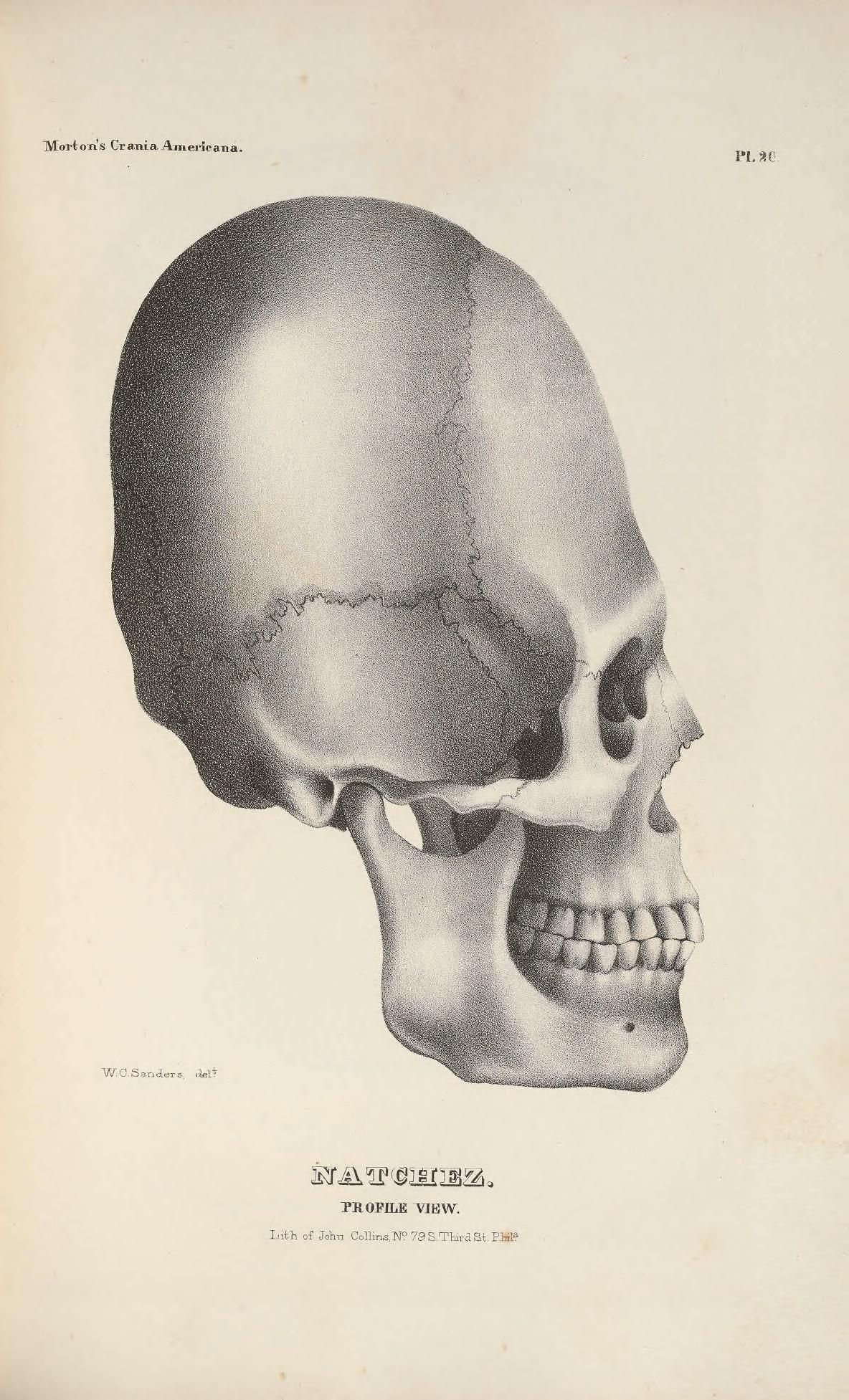 Crania americana; or, A comparative view of the skulls of various ...