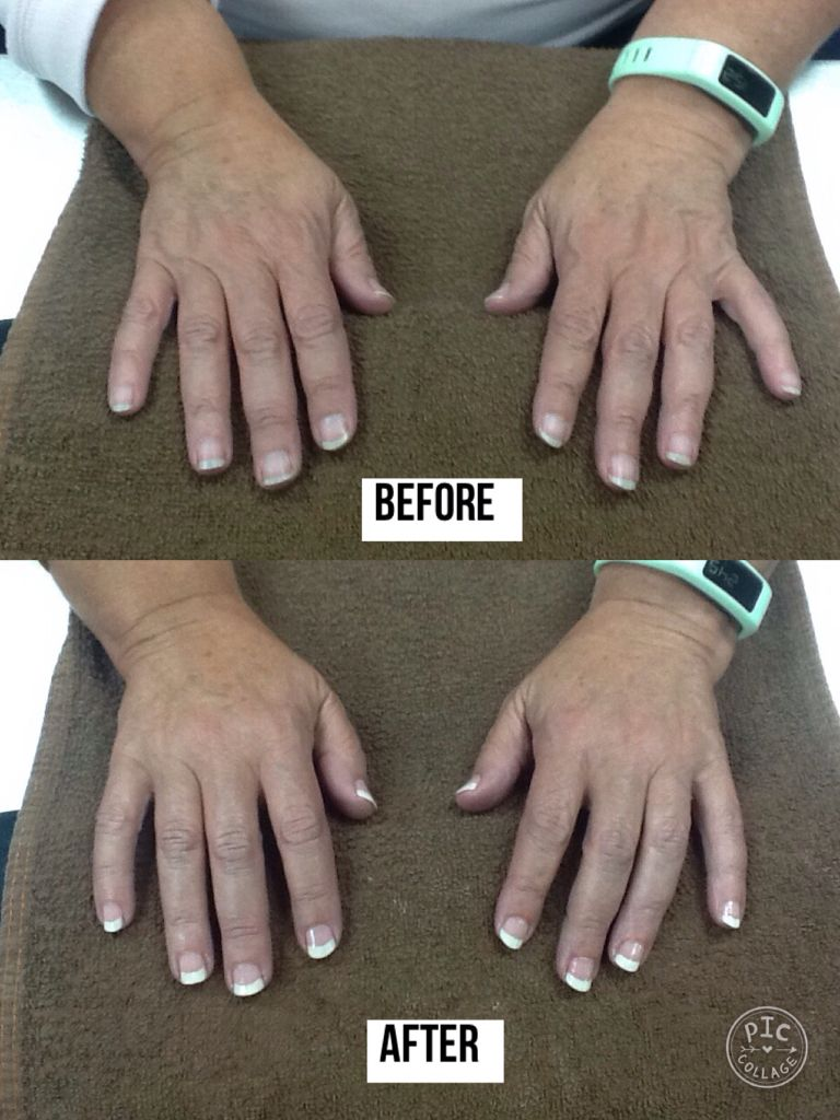 Before and after French tip manicure using OPI nail polishes ...