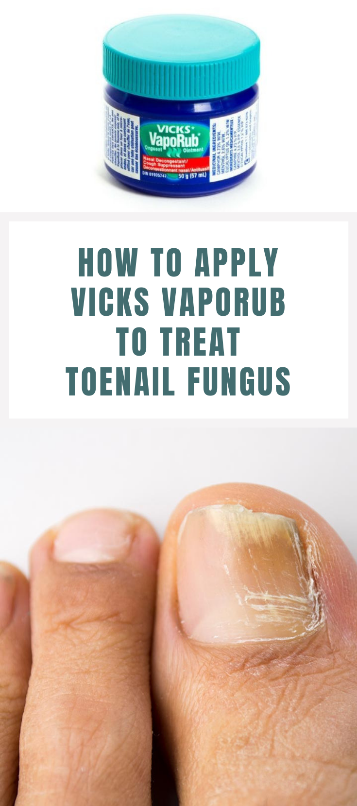 How To Apply Vicks Vaporub To Treat Toenail Fungus Vicks Vaporub
