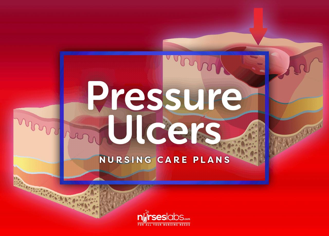Pressure Ulcer Bedsores Nursing Care Plans  Pressure Ulcer