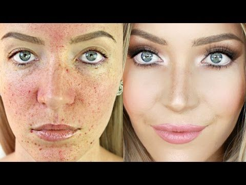 Acne Coverage Foundation Routine (Acne Scarring + Pigmentation ...