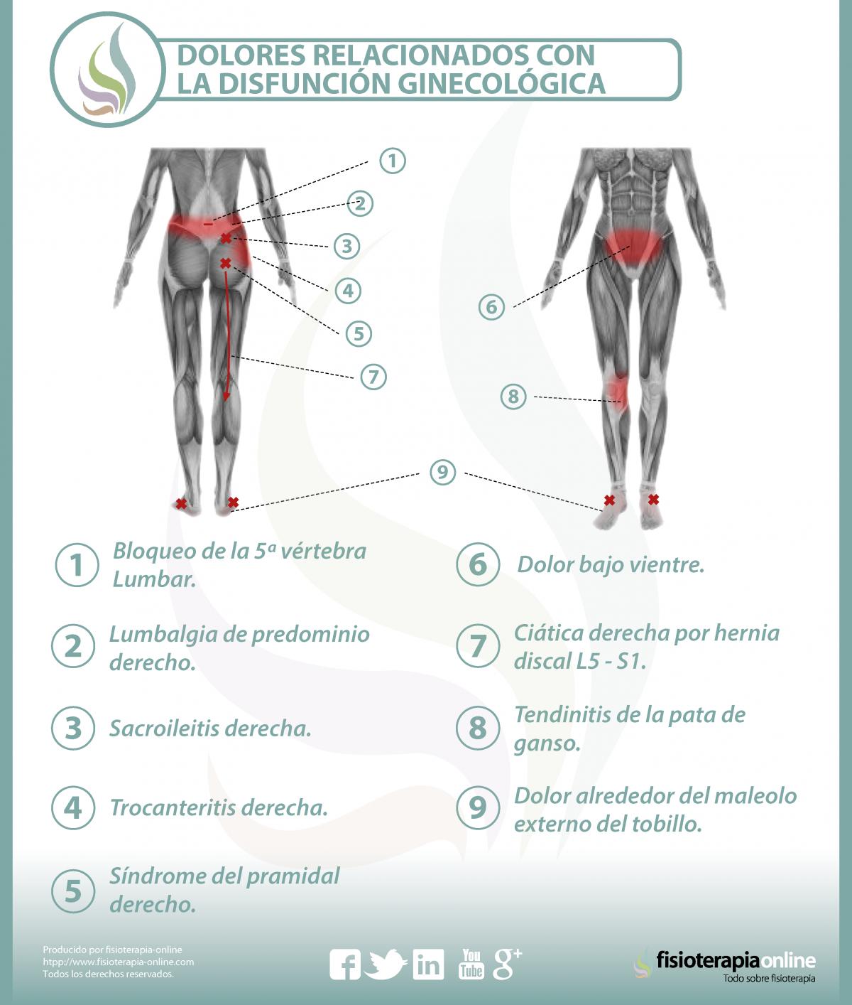 Espalda dolor de la endometriosis causa