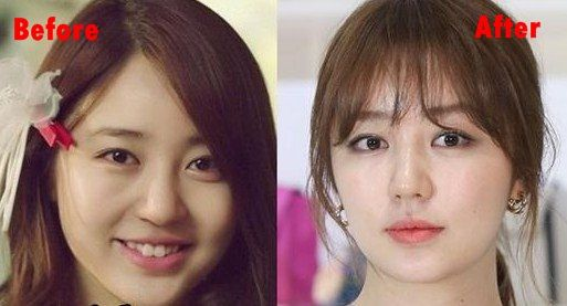 Yoon Eun Hye And After