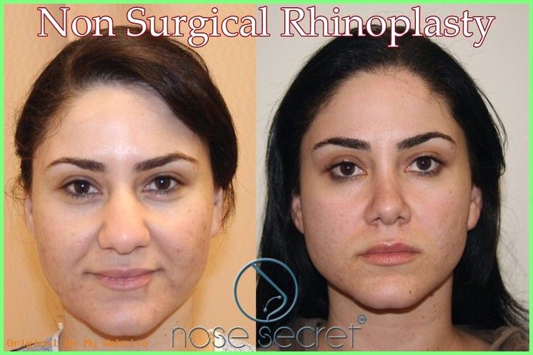Imagen de Ingrid Carolina en cirugia Cirugia de nariz