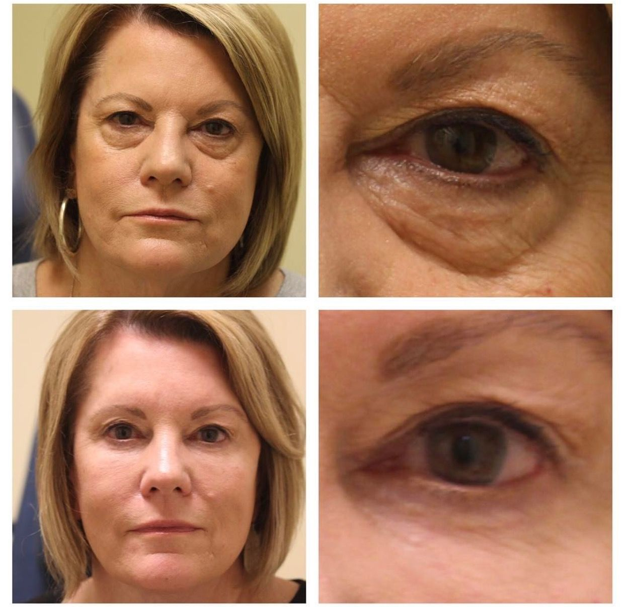4 Months After Conservative Browlift And Lower Blepharoplasty No