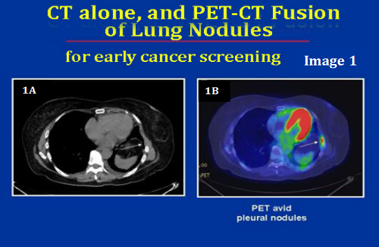 PET CT Scan Where Can You Get PET CT Scan Done At