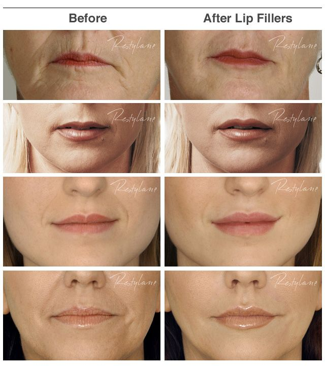 lip fillers before and after juvederm | Lip Fillers - Before