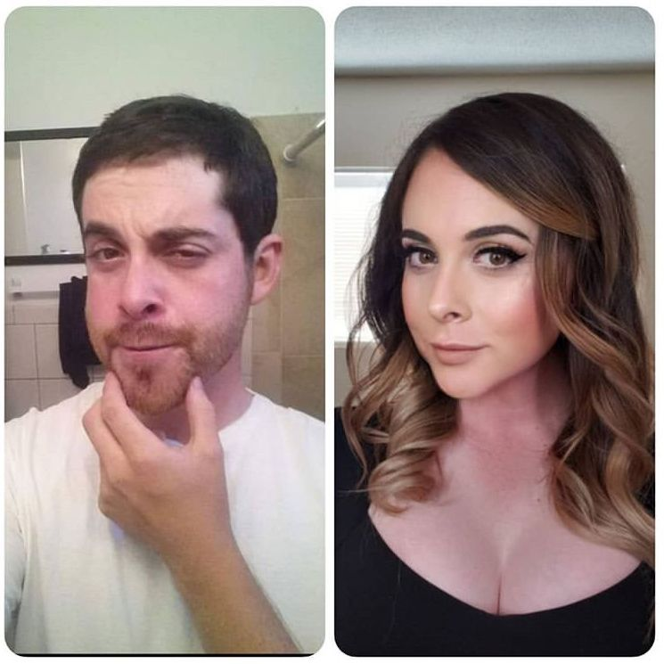 London Trans Clinic Before And After Results Of Ffs Or -8723