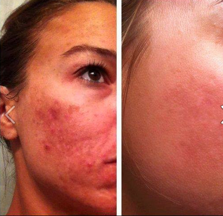 how to clear red skin on face