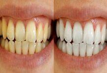 Receita Caseira Para Eliminar Dentes Amarelados Passo A Passo