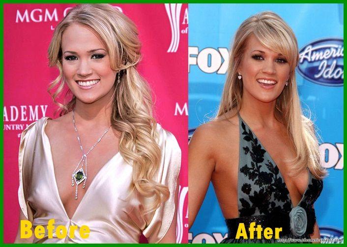 Carrie underwood boob pics