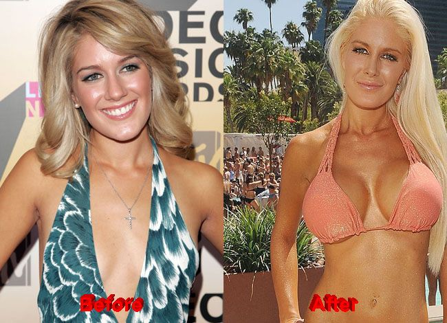 Can not Heidi montag boob apologise