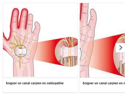 Osteopathe Saintnazaire Sport Labaule Osteopathedusport Osteopathestnazaire 44600 Osteopathe Le Pouliguen Osteopathe Saint Nazaire Sport Osteopathie
