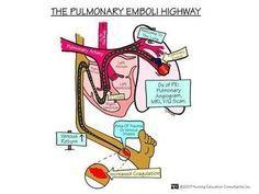 Pulmonary Embolis
