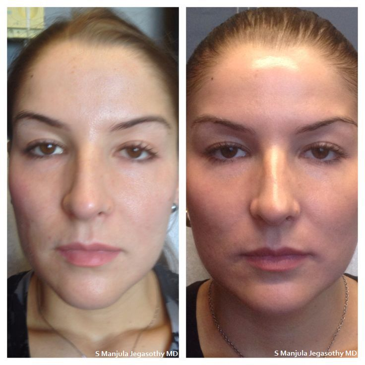 #ShapeYourCheeks with#Expression or#JuvedermVoluma &#ShapeYourJawline with#Dysport .Beautiful facial feature enhancement without surgery!