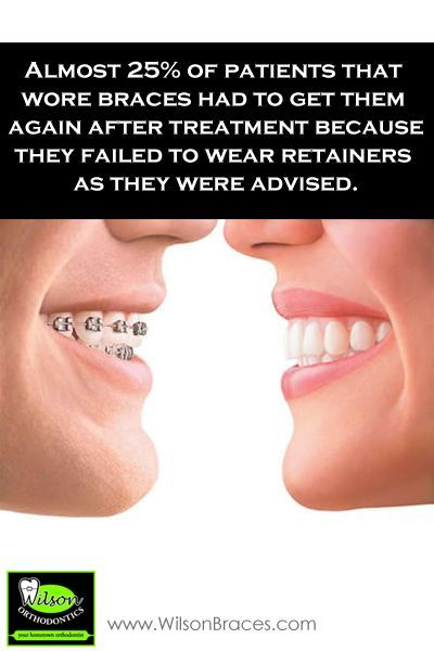 Do yourself a favor wear your damn retainer orthodontic fact 1 do yourself a favor wear your damn retainer orthodontic fact almost of patients that wore braces had to get them again after treatment because they failed solutioingenieria Gallery