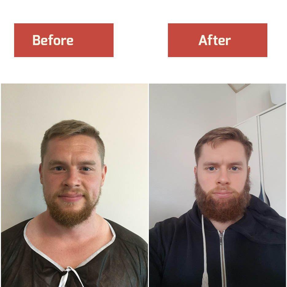 Beard Transplant Result Beard Transplant Beard Hair Transplant