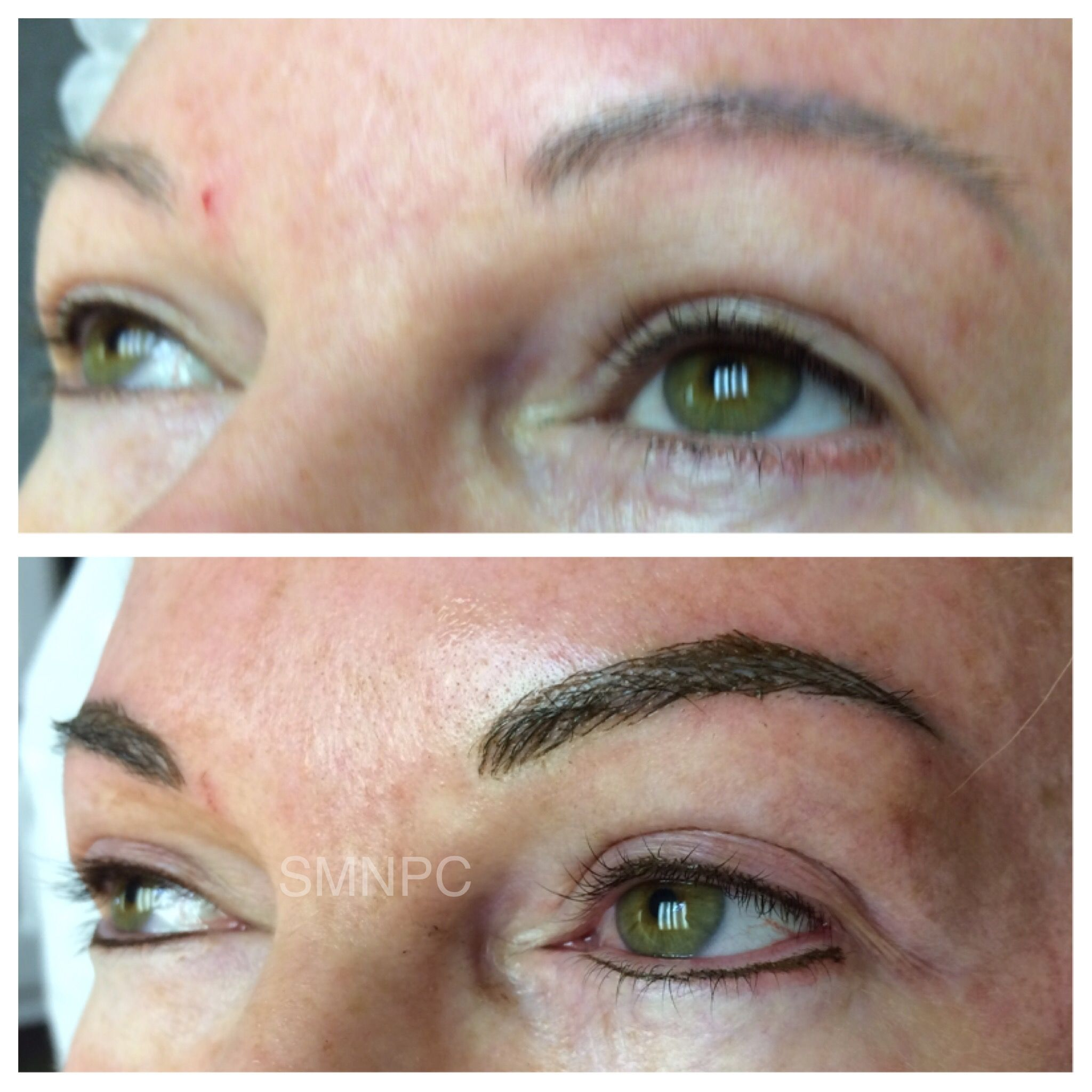 Before Above And Immediately After Microbaded Brows And Lower