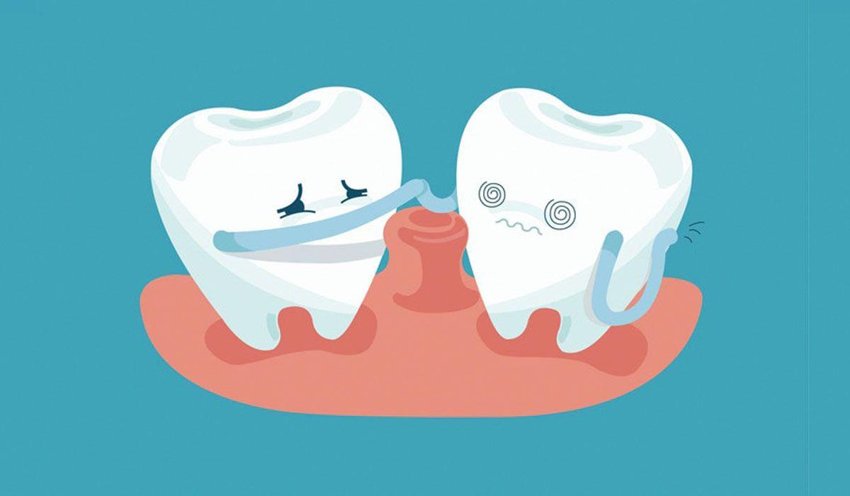 أفضل علاج لالتهاب ضرس العقل Periodontitis Periodontal Disease Dental