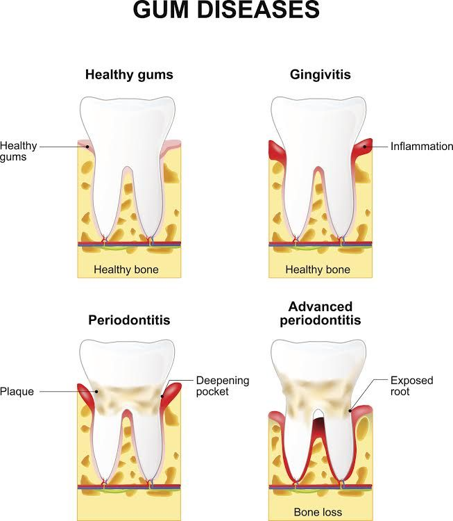 Gingivitis vs Periodontitis What\u0027s the difference? #ad #dentist