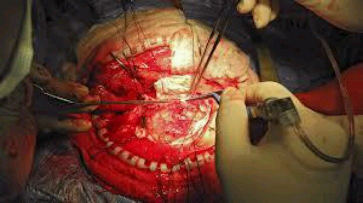 this photo represents a neurosurgery extracting the brain tumor