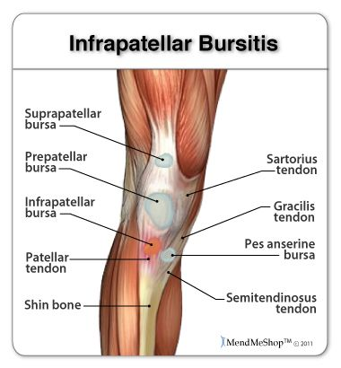 Infrapatellar bursitis causes pain in the area around the middle of ...