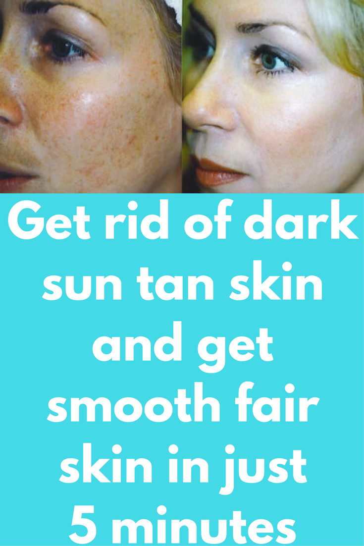 How To Get Rid Of Sun Tan On Brown Skin