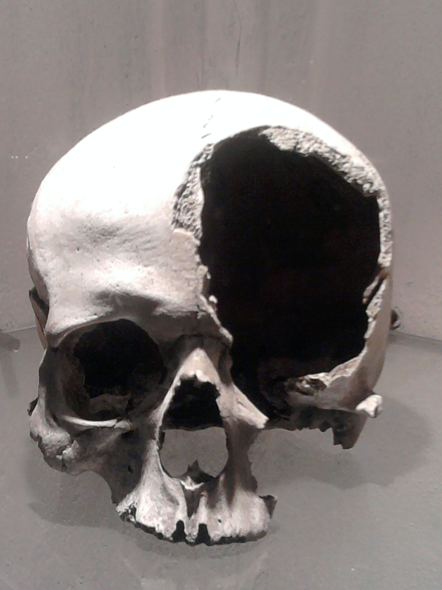A medieval, bashed-in skull.