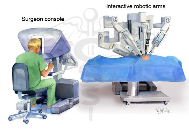 Ai robots and the evolution of laparoscopic surgeries Research paper