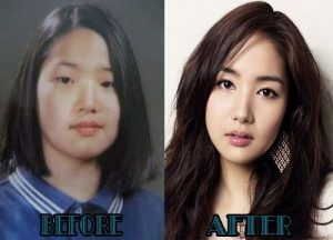 Korean Actresses Plastic Surgery Before And After To Be Before And After Pictures And Parks On Pinteres Korean Plastic Surgery Plastic Surgery Korean Actresses