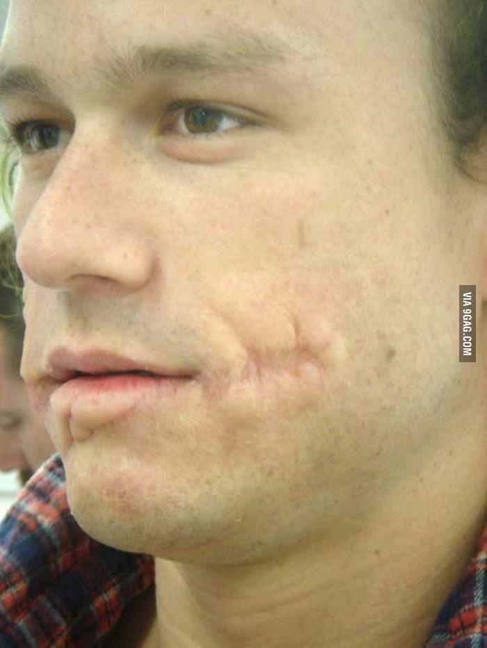 Heath Ledger With Joker Prosthetics But No Makeup Misc Heath - Joker-no-makeup-ics