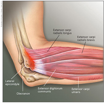 What Can I Do About My Sore Elbow Girls Gone Strong Tennis Elbow Physical Therapy Sore Elbow