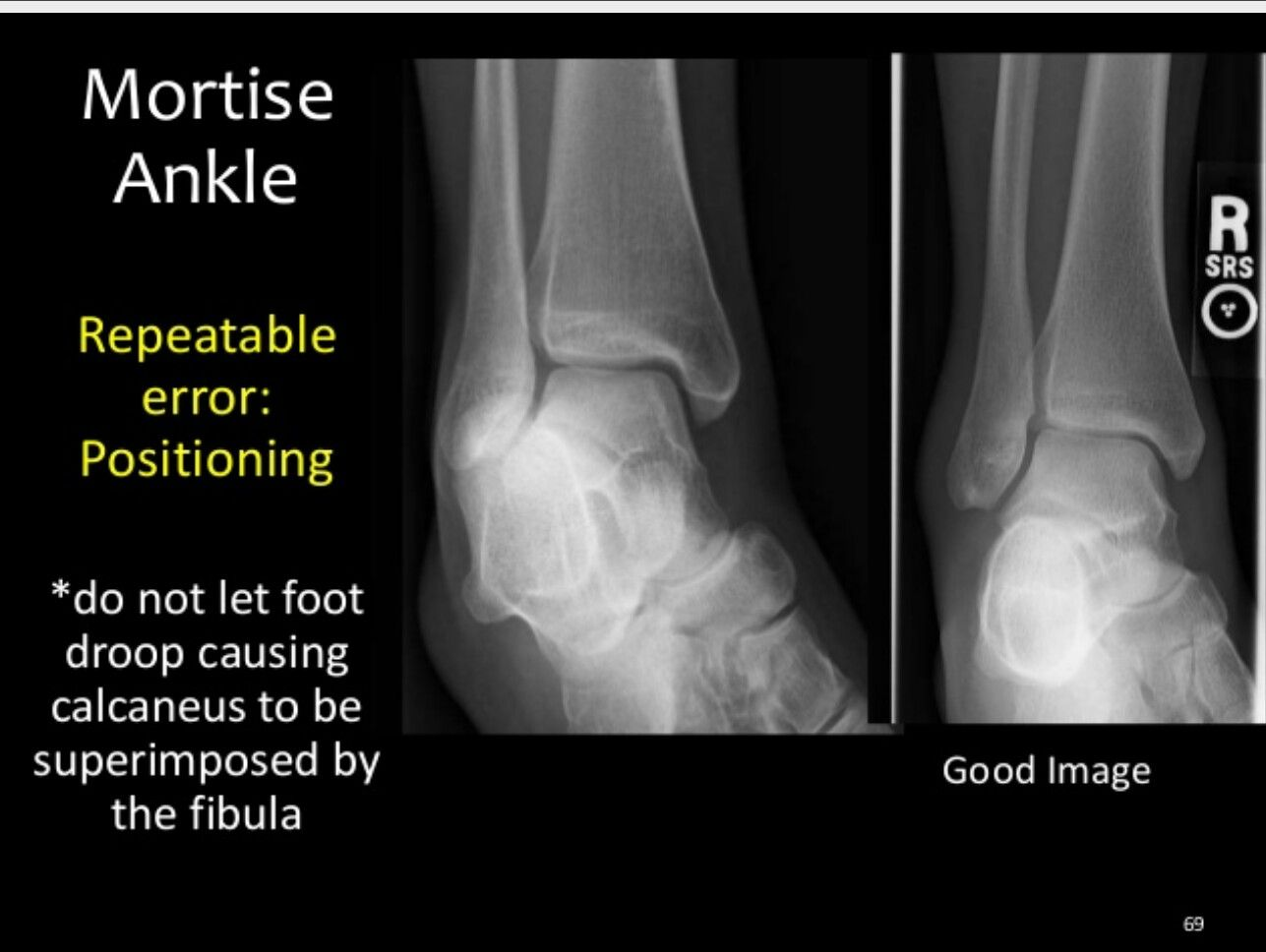 Mortise Ankle