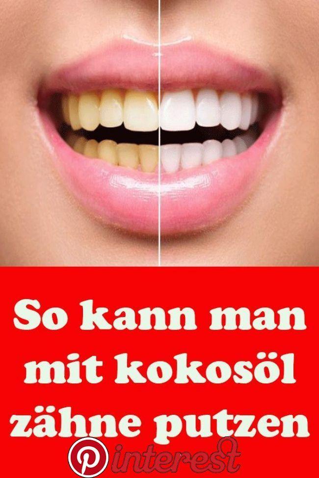 So kann man mit Kokosöl Zähne putzen | Kokosöl zähne ...