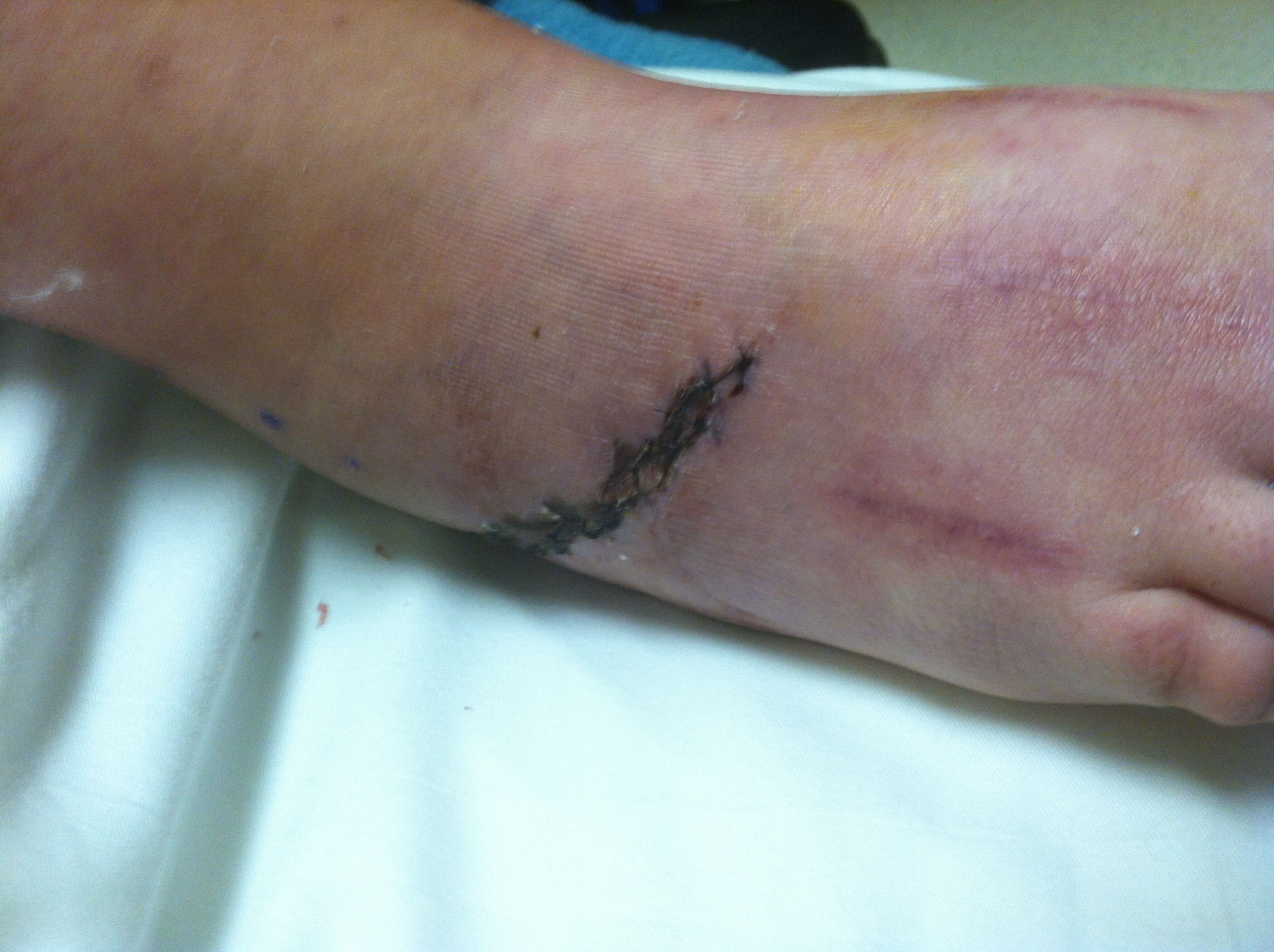 4 weeks post-op  having stitches removed after ankle/heel