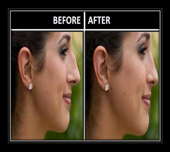 How To Get Smaller Nose Without Surgery Hair Beauty Small Nose