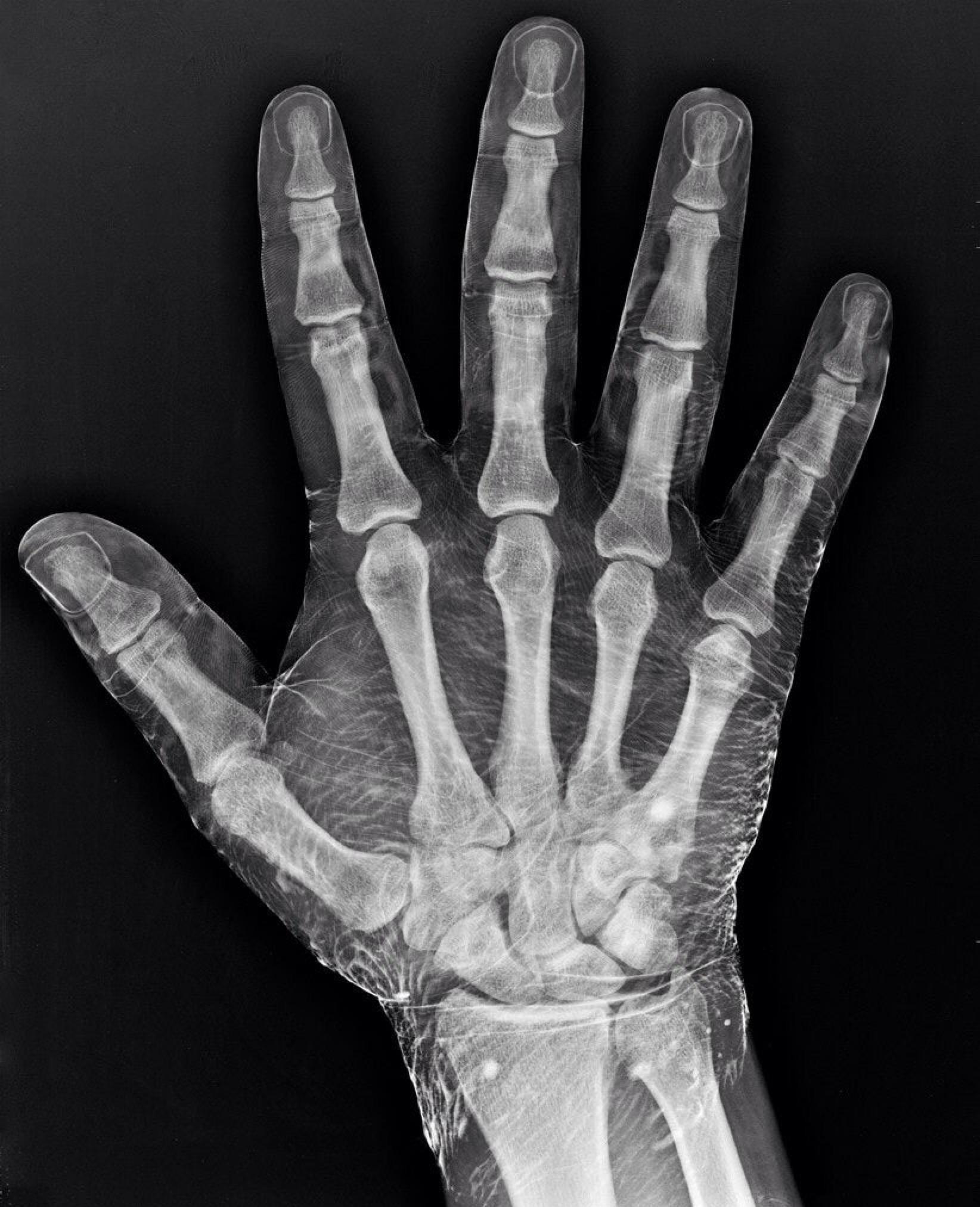 e4c1499a91b47713387e231b1710d7a7 » X-ray Drawing