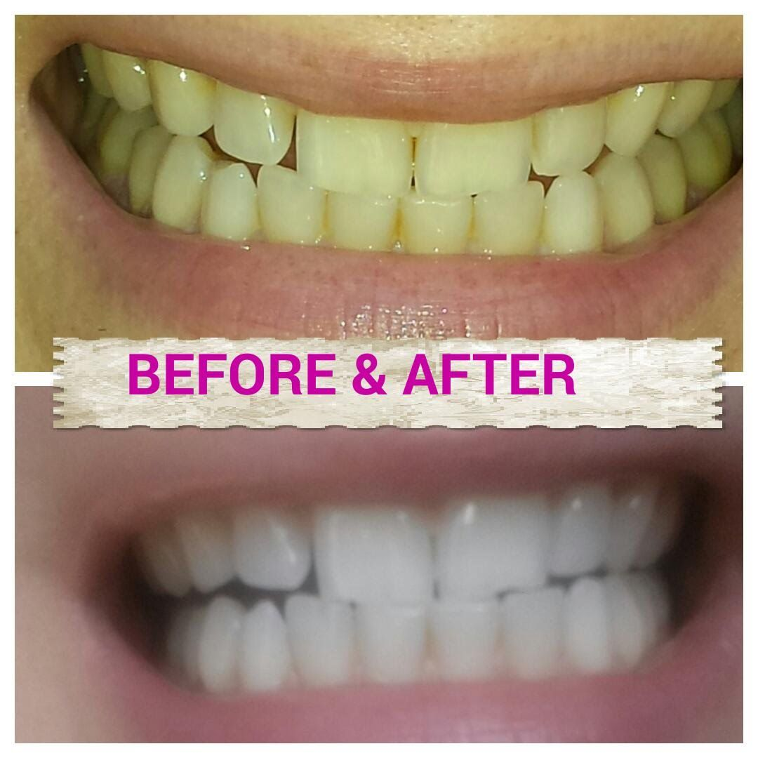 Teeth whitening naturally with tumeric a spice found in any