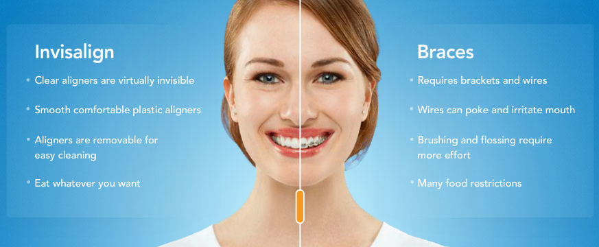 I\'ve never had braces before so my teeth have never been perfectly ...