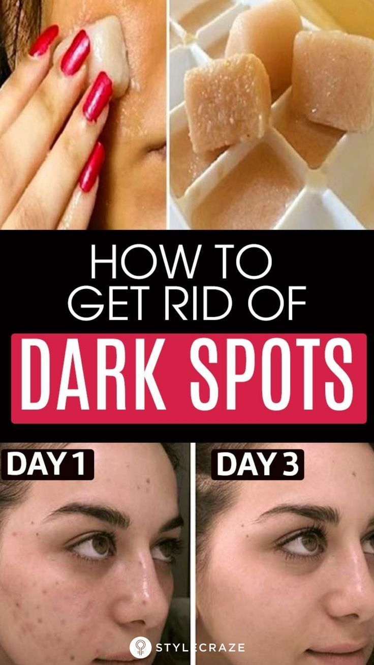 How To Remove Dark Spots On Face Fast: 6 Home Remedies