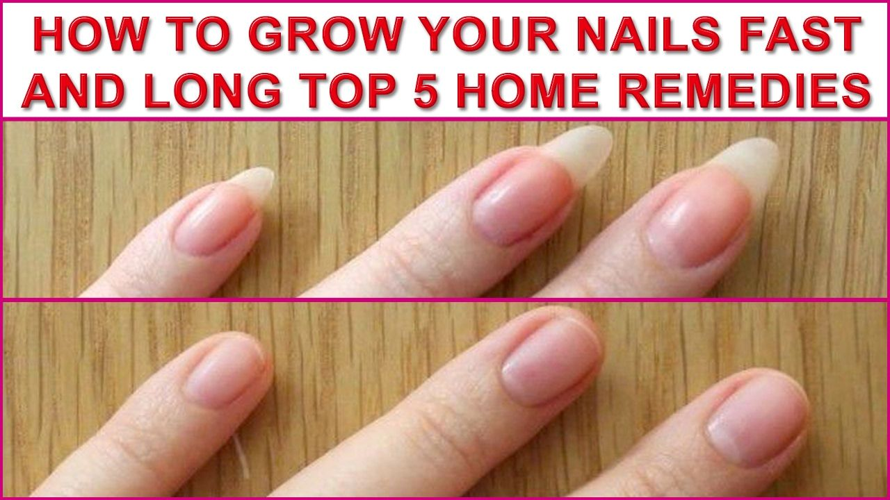 How to grow your nails fast and long top 5 home remedies