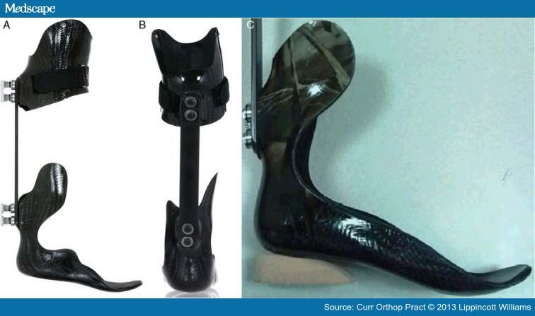 Image result for dynamic strut afo   Prosthetics, Wounded ...