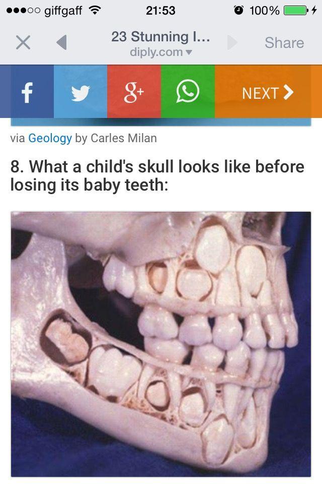 Pin By Jim Mcmillan On Random Pics Trypophobia Childs Skull