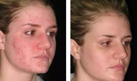 How to get rid of pimples and redness overnight