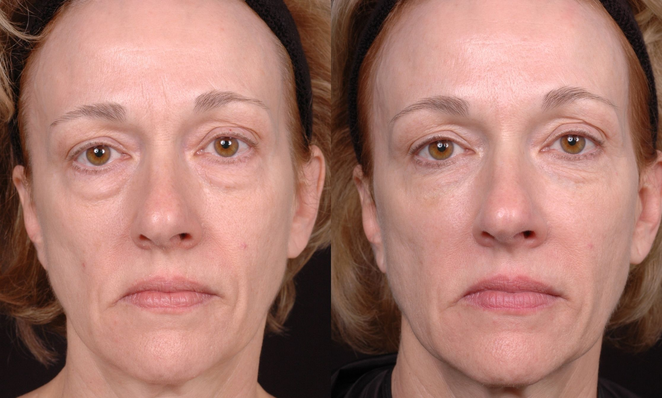 Chinese Acupressure Facelift Toning Exercises To Look ...