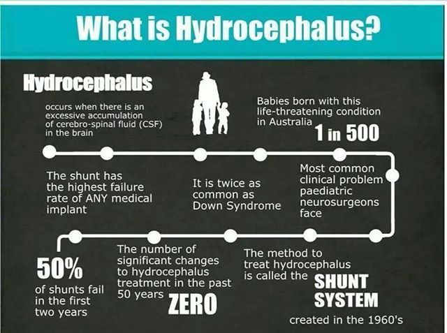 Definition Of Hydrocephalus For Those Of You Who Need A