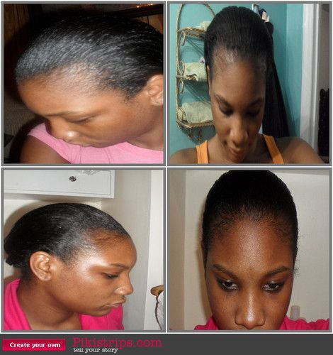 Black Hairstyles For Thin Edges Fair How To Treat Thin Edges  Pinterest  Dandruff Fast Hair Growth And